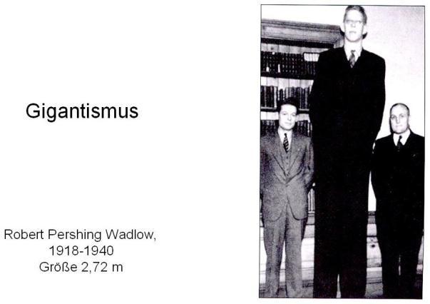 Robert Pershing Wadlow, 1918-1940, Größe 2,72 m