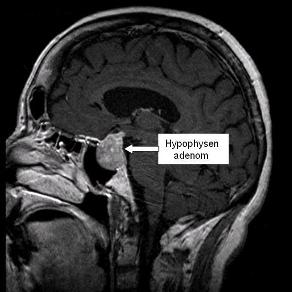 Kernspintomographie des Schädels eines Pat. mit Akromegalie und Hypophysenadenom (Übersicht).