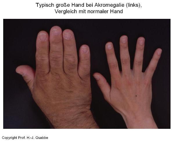 Typisch große Hand bei Akromegalie, Vergleich mit normaler Hand.