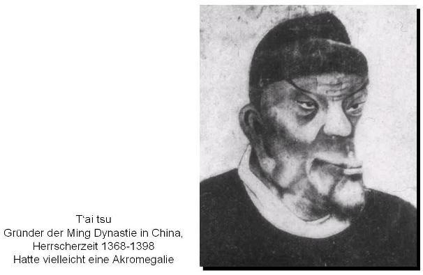 T'ai tsu Gründer der Ming Dynastie in China, Herrscherzeit 1368-1398. Hatte vielleicht eine Akromegalie.