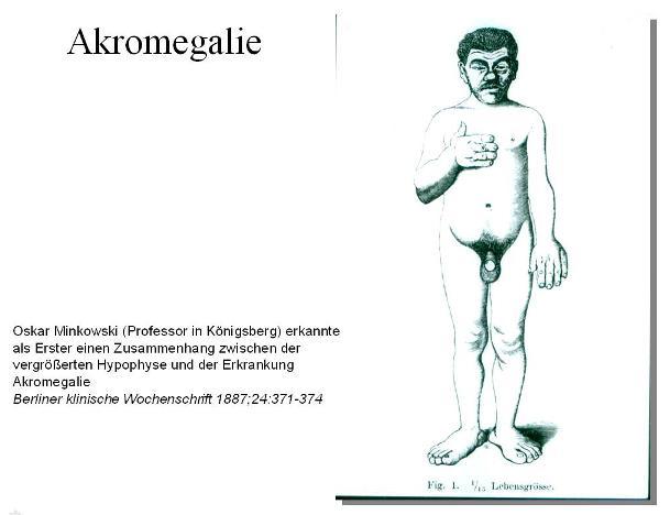 Oskar Minkowski (Professor in Königsberg) erkannte als Erster einen Zusammenhang zwischen der vergrößerten Hypophyse und der Erkrankung Akromegalie. Berliner klinische Wochenschrift 1887;24:371-374