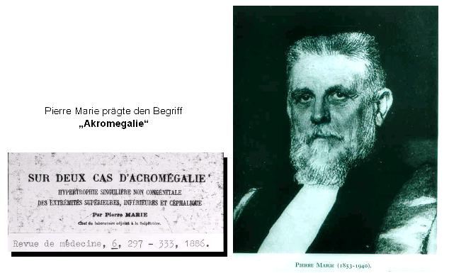 Pierre Marie prägte den Begriff Akromegalie.