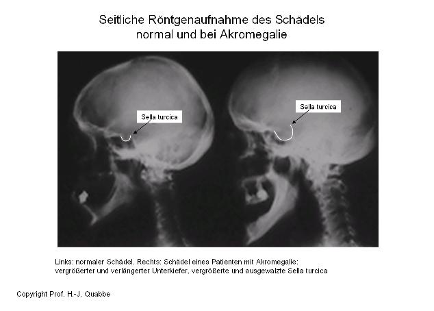 Seitliche Röntgenaufnahme des Schädels. Normal und bei Akromegalie.